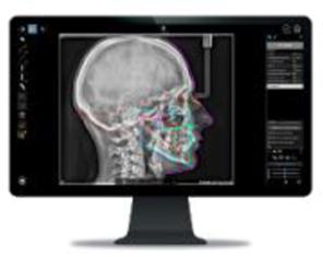 Разширете вашата визия, разширете Вашата практика! Предимства с един поглед – CS 8200 3D Carestream Dental