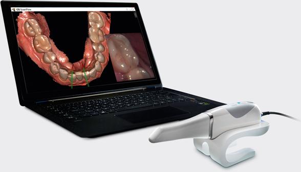 Преносим CS 3600 3D Scanner – бързо и гъвкаво интраорално сканиране
