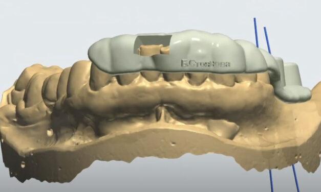 3D водено поставяне на импланти – представяне на клиничен случай с тригодишно проследяване