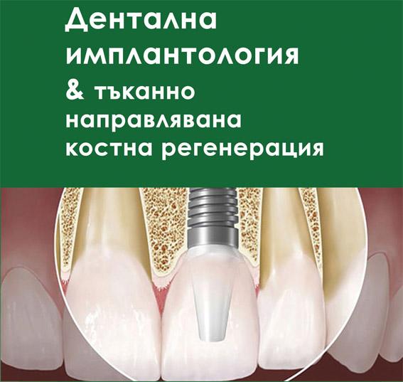 """Представяме ви книгата """"Дентална имплантология & тъканно направлявана костна регенерация"""" – второ издание"""